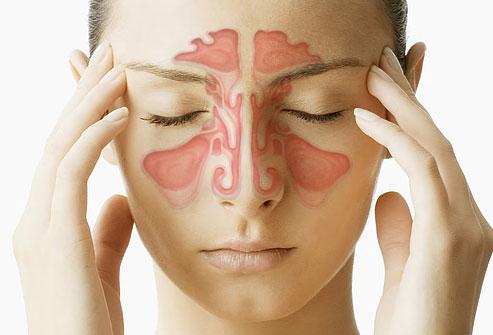 Hoắc đởm hoàn- Bài thuốc cổ phương đặc trị Viêm xoang mạn tính 2