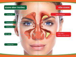 Tìm hiểu về viêm xoang và nguyên nhân mắc bệnh 1