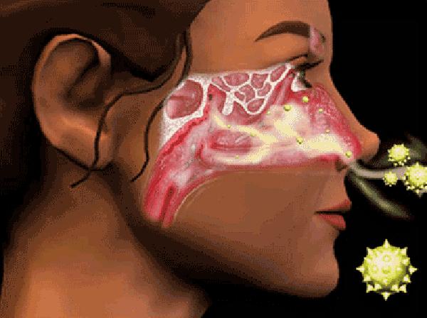 Bệnh viêm xoang trong Đông y 1