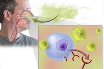 Viêm mũi dị ứng – Nguyên nhân, điều trị