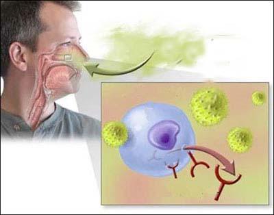 Viêm mũi dị ứng - Nguyên nhân, điều trị 1