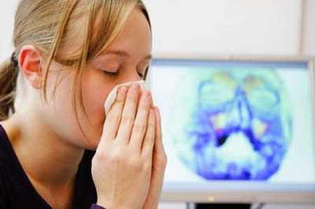 Viêm đa xoang - Nguyên nhân, triệu chứng 1