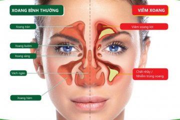 Triệu chứng bệnh viêm xoang mũi mãn tính