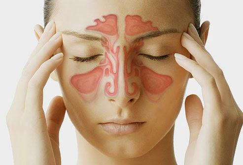 Nguyên nhân và cách điều trị bệnh viêm xoang 1