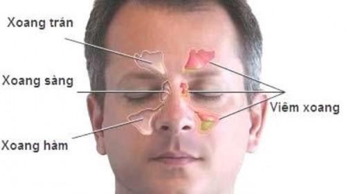 Triệu chứng của bệnh viêm xoang mũi 1
