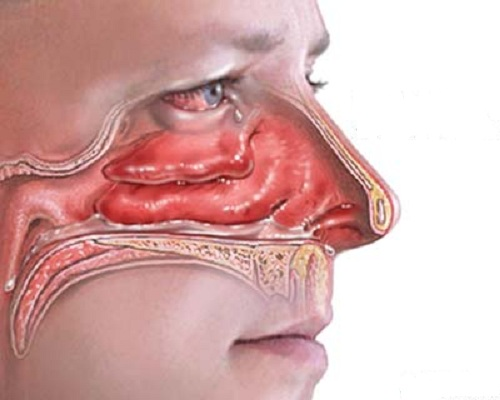 Bệnh viêm mũi và cách điều trị 1