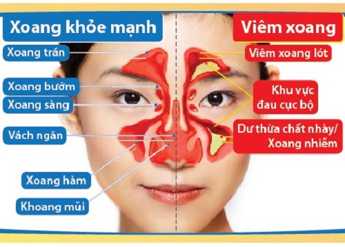 Cách điều trị bệnh viêm xoang mũi 1