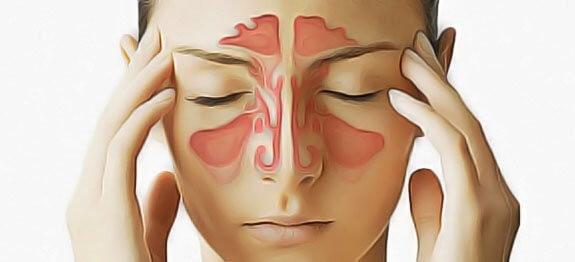 Triệu chứng của bệnh viêm xoang sàng 1