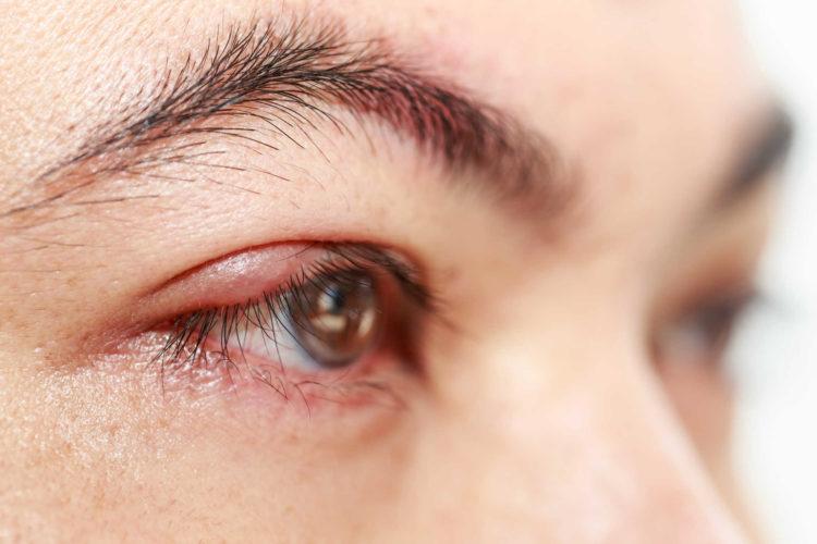 1.Biến chứng về mắt 1