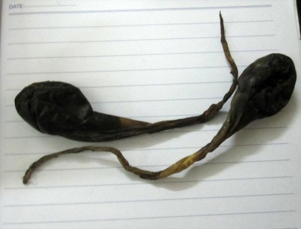 Mật lợn - Thành phần có trong bài thuốc trị xoang anh Bình đã sử dụng
